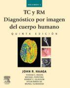TC y RM. Diagnóstico por imagen del cuerpo humano (ebook)