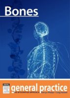 Bones (ebook)