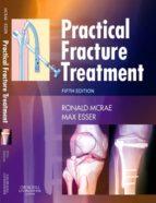 Practical Fracture Treatment (ebook)