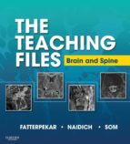 The Teaching Files: Brain and Spine Imaging (ebook)