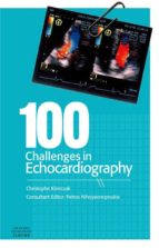 100 Challenges in Echocardiography (ebook)