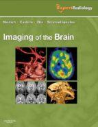 Imaging of the Brain (ebook)