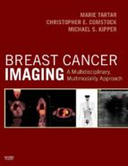 Breast Cancer Imaging (ebook)