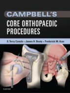 Campbell's Core Orthopaedic Procedures (ebook)